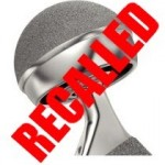 DePuy Hip Implants RECALLED