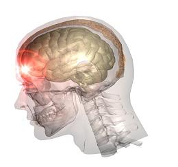 traumatic brain injury tbi sever and mild mininno law office