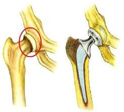 depuy hip implant recall attorneys new jersey philadelphia asr replacement