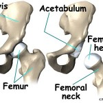 depuy defective hip replacement new jersey and philadelphia attorneys