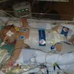 Birth Injury Attorneys Get Wind of Life Saving New Technology