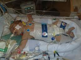 new jersey phildelphia attorneys birth injury saving new technology