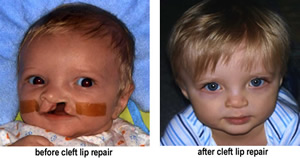 an overview of the facial birth defects of cleft lip and palate Defects involving the hard and soft palates (not extending anterior to the incisive  foramen)  facial clefts corresponding cranial extension of facial clefts  birth  to babies with cleft lip/palate the oculo-auriculo-vertebral (oav) disorders are.