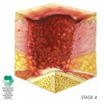 Bed Sores Stages - Stage IV