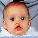 Birth Defects Attorneys: Oral Clefts Cause Speech and Hearing Issues