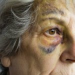nursing home abuse lawyers