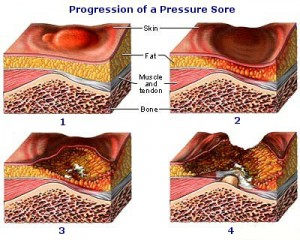 http://www.minfirm.com/wp-content/uploads/2011/09/bed-sore-300x240.jpg?e8bd46